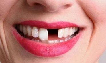 sans dent